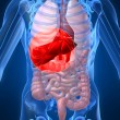 Inflamed liver - Stock Photo