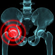 Inflamed hip — Stock Photo