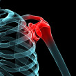 Painful shoulder — Stockfoto