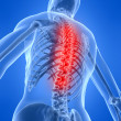 Painful back — Stock Photo