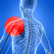 Painful shoulder — 图库照片
