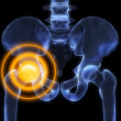 Inflamed hip - Stock Photo