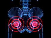 Inflamed hips — Stock Photo