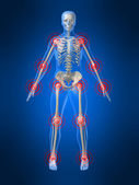 Inflamed joints — Stock Photo