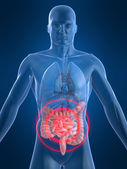 Painful intestines — Stock Photo