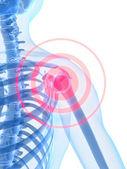 воспаление плечевого — Стоковое фото