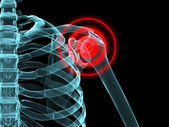 Inflamed shoulder — Stock Photo