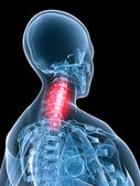 Painful neck — Stockfoto