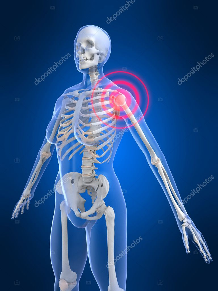 3d rendered illustration of a painful skeletal shoulder — Stock Photo #2628559