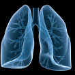 Lung and bronchi — Stock Photo