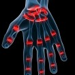 Painful hand joints — Stock Photo #2633747