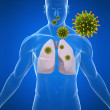 Lung infection - Stock Photo