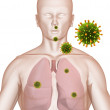 Lung infection — Stock Photo
