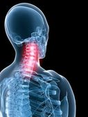Painful neck — Foto Stock