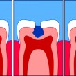 Caries - Stock Photo