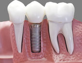 Capped Dental Implant Model — Stock Photo
