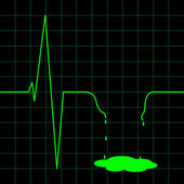 elektro kardiogram ilustrace