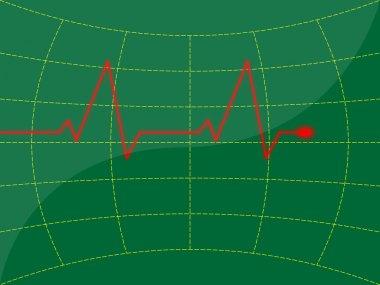 Heart signal