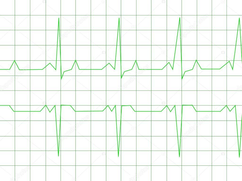 Картинка нормального экг. Нормальный сердечный ритм — Стоковое ...