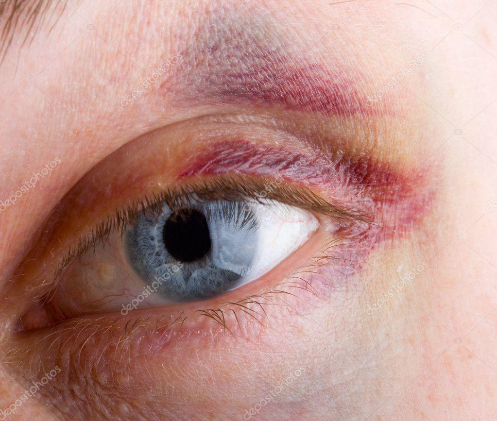 hématome yeux