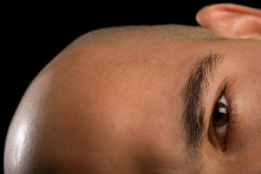 Bald man eye