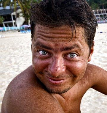 Man with sunburn skin