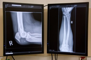 Broken Elbow
