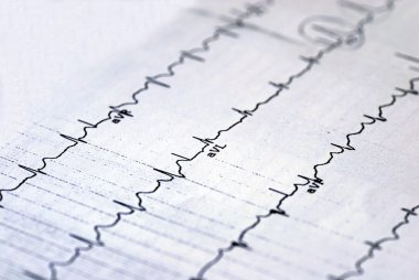 A macro picture of the EKG chart