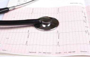 Stethoscope on ecg graph