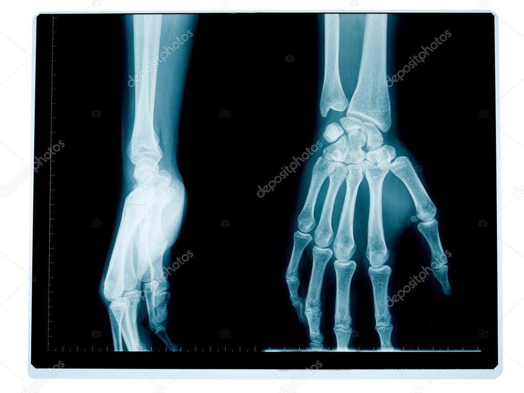 radiografía de la mano y la muñeca — Foto de stock © ldambies #2464184