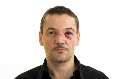 Man with broken, crooked nose and black eye