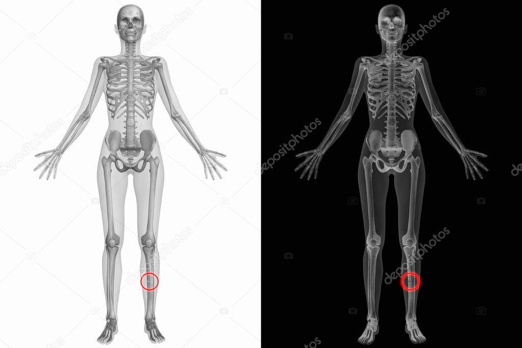 menschliche Anatomie - linken Schienbein gebrochen — Stockfoto ...