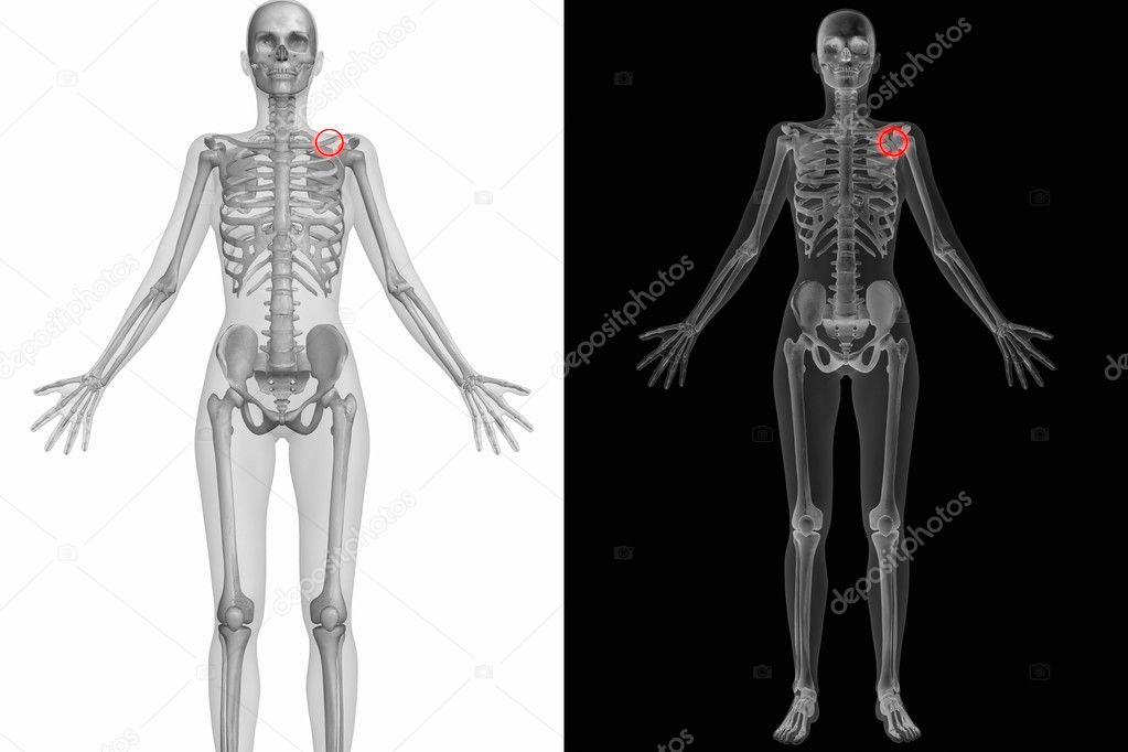 menschliche Anatomie - linken Schulterblatt gebrochen — Stockfoto ...