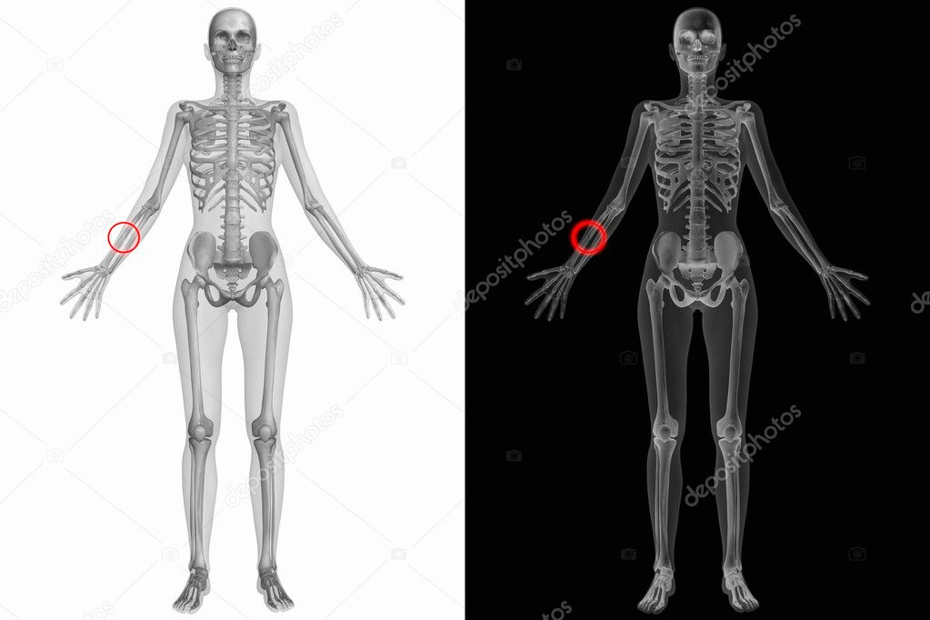 Human Anatomy - Broken Right Radius — Stock Photo © Digitalstudio ...
