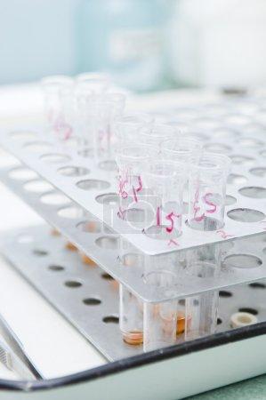 Close-up of medical test tubes