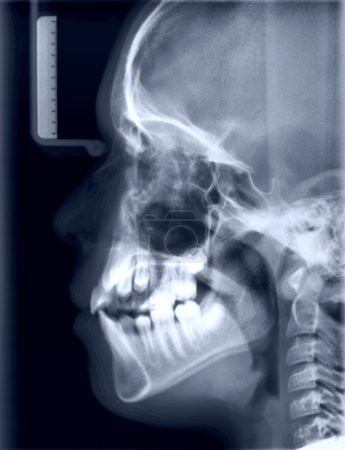 X-ray picture of the skull of the person