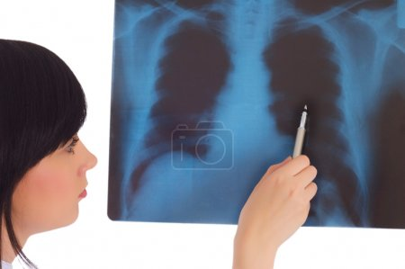 Female doctor looking at x-ray