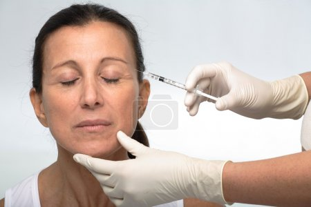 Mature woman botox