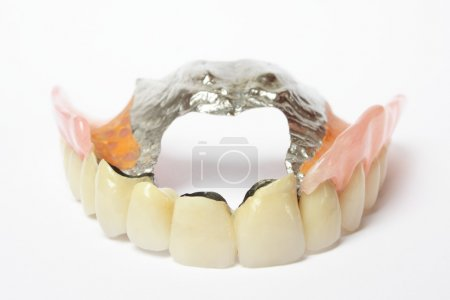 Photo for Dentures, dental prosthesis, removable partial denture in white backgrounds - Royalty Free Image