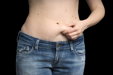 Girl measuring fat on her stomach